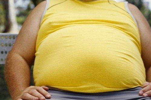 मोटापा- कारण, पहचान, नुस्खे | Obesity | Motapa- kaaran, pehchaan aur nuskhe