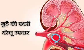 Jaaniye pathari ka gharelu ilaaj aur nuskhe | Kidney Stone Treatment