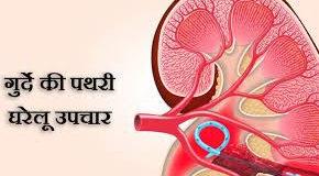 गुर्दों में पथरी के नुस्खे - Kidney Stone | जानिये पथरी का घरेलू इलाज और नुस्खे | Jaaniye pathari ka gharelu ilaaj aur nuskhe | Kidney Stone Treatment