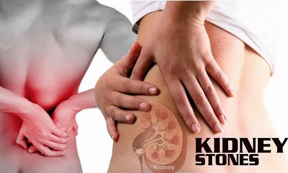 Dhyaan rakhe jjyada garmi se bhi ho sakti hai kidney mein patthri- Stone
