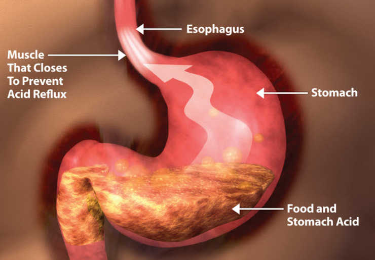 Suffering from acidity and heartburn do these 10 changes