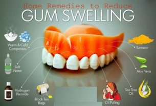 10 Natural Remedies for Swelling in Gums