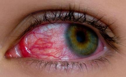 आँखों की जलन दूर करने के नुस्खे- Remedies for irritation in Eyes