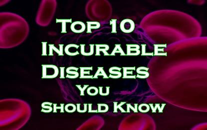 10 Incurable Diseases You Should Know, 10 बीमारिया जिनका इलाज आज भी खोजना डॉक्टर्स के लिए टेढ़ी खीर है