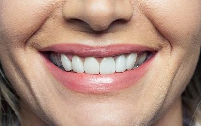 6 Teeth Problems Growing with the Age, उम्र के साथ बढ़ती है दांतों की यह 6 परेशानियां भी, जानिये