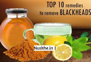 Blackheads hatane ke 10 asaan gharelu nuskhe, 10 tips to remove blackhead easily
