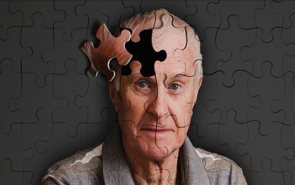 10 Direct Symptoms of Alzheimer , Alzheimer ke 10 Direct Signals
