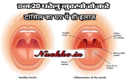 इन 20 घरेलु नुस्खो से करे टांसिल का घर में ही इलाज, 20 Home Remedies For Swollen Tonsils